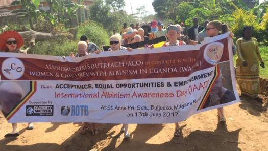 ACO albinism awarness march
