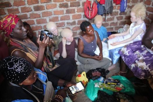 Albinism Crisis Outreach Fredah